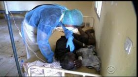 Nigeria Records Seven Cases Of Ebola Virus Disease Incuding Two Death Cases